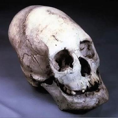 Extraterrestrial skull