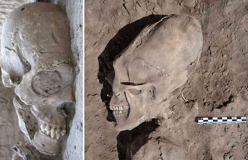 25 old skeletons were found in the village of Onavas ( North-West Mexico) in 2012. 13 of them had elongated skulls, 5 of which had strange teeth: pointy front teeth and flat canines